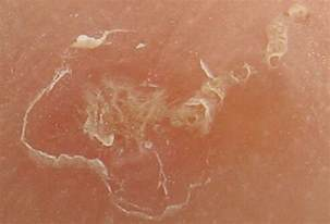 scabies on the tip of the penis picture 3