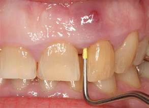abscessed teeth picture 18