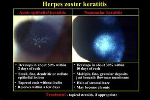 shingles herpes zoster picture 5
