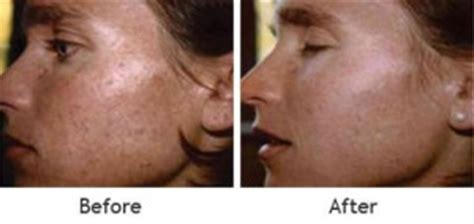 is glycolic acid ls good for acne scaring picture 2