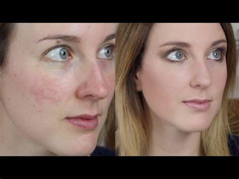 acne scar makeup picture 2