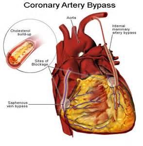 hemorrhoids sclerotherapy phenol coronary vasospasm picture 5