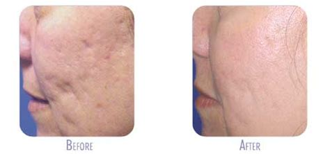 fraxel laser for acne scarring encino picture 4