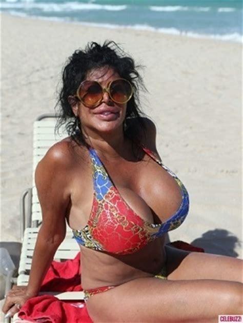 botex breast enlargement picture 17