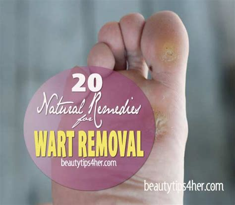 lip wart removal home remedies picture 6