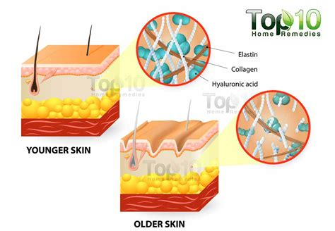 can vicks help in tightening of the skin picture 7