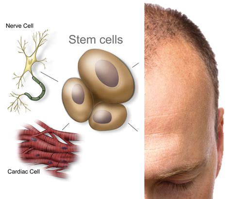stem cell hair regrowth 2014 picture 1