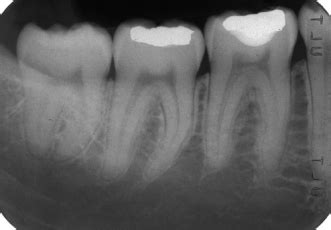 bone loss in teeth picture 9