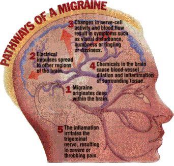 migraine picture 2