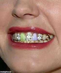 dry mouth teeth hurting metal taste picture 15