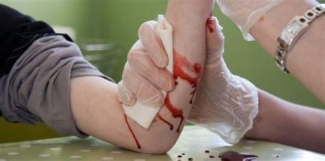 bleeding picture 10
