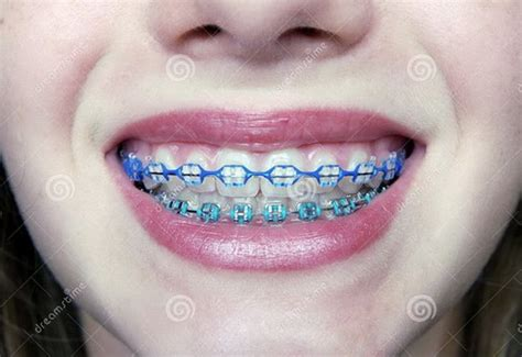 colored braces teeth picture 5