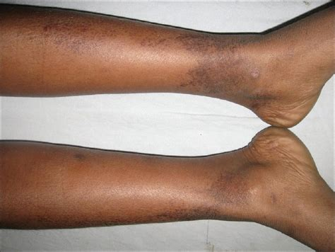 the skin on my calves is turning black picture 9