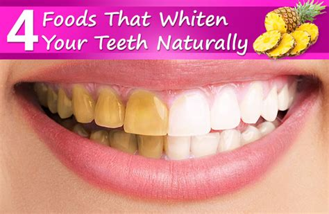 can you whiten teeth naturally picture 9