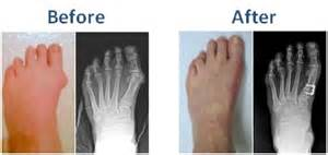 are you put to sleep for bunion surgery picture 1