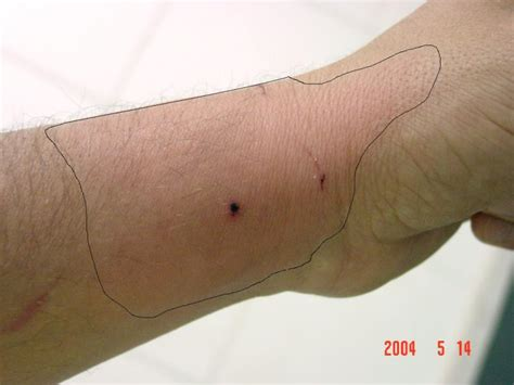 cat bite skin infections picture 7