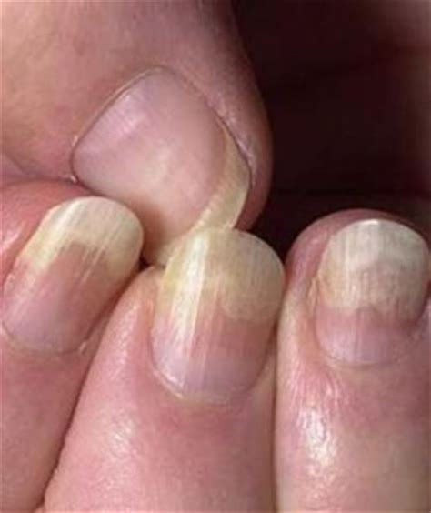thyroid problems and fingernail problems picture 1