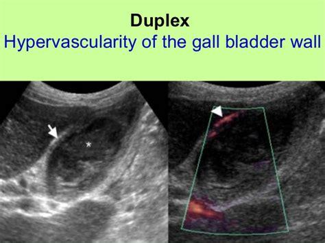echogenic stones gall bladder picture 1