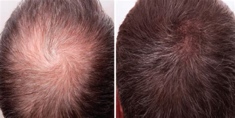 derma needle hair regrow picture 15