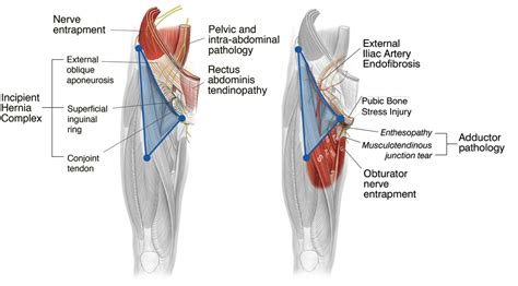 groin muscle pain picture 2