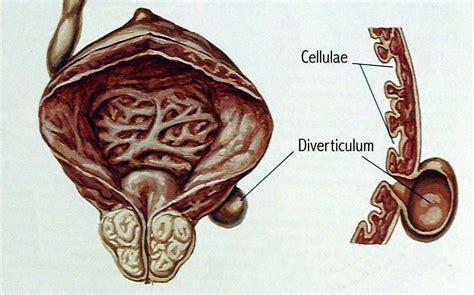 bladder blockage picture 3