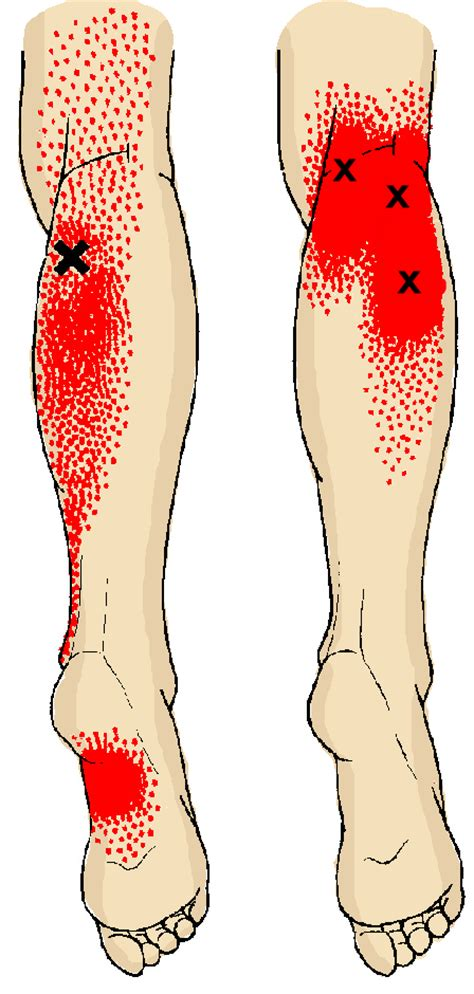 calf muscle pain picture 2