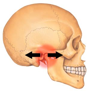 temporomandibular joint popping picture 4