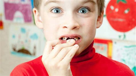 child's health loose teeth picture 7