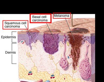 is there a natural cure for basal cell skin cancer picture 8