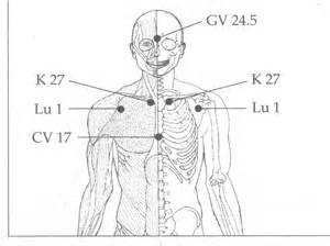 acupuncture for thyroid picture 5