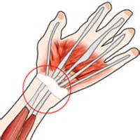 joint pain arthritis picture 3