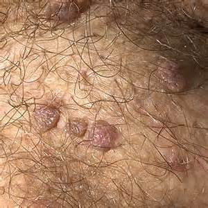 what is genital warts picture 10