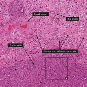 carcinoma of the liver picture 17