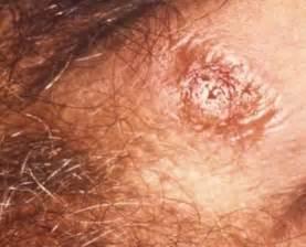 bentuk vagina dan penis picture 5
