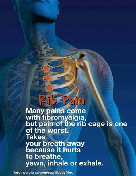 Muscle pain in rib cage picture 6