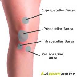 pain relief for suprapatellar joint wffusion picture 4