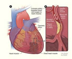 natural cholesterol reduction picture 7