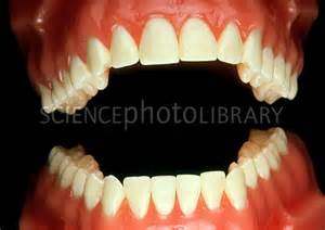 fales teeth picture 2