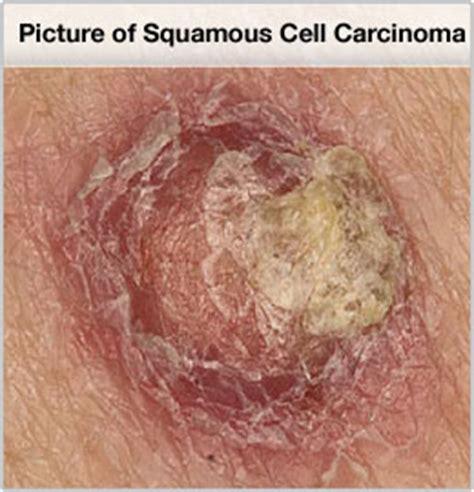 skin cancer invades nerves picture 1