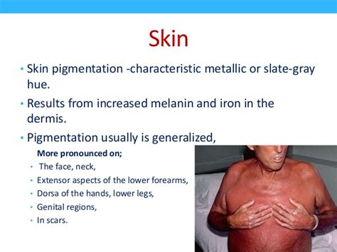 diabetes skin picture 1