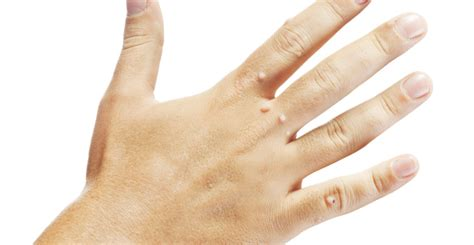 what do skin warts finger warts look like picture 1