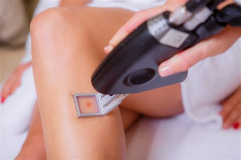 skin lazer salons picture 5