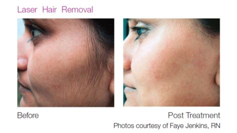 allure skin and laser picture 3