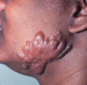 medicine for keloids in philippines news picture 11