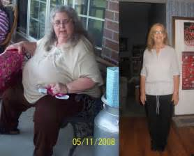 incredible weight loss picture 10