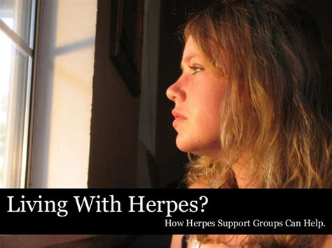 herpes support groups picture 5
