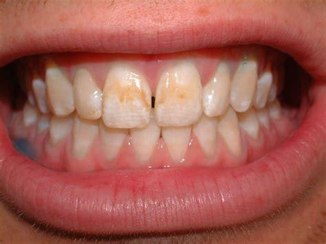 discolored teeth enamel effacia picture 19