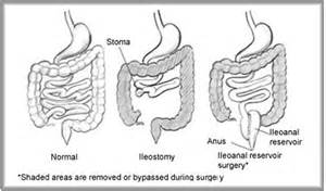 Bowel movements after colon resection surgeruy picture 11