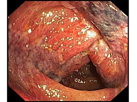 ischemic colon picture 6