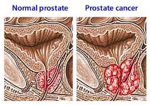 how long does prostate cancer stay in bones picture 7